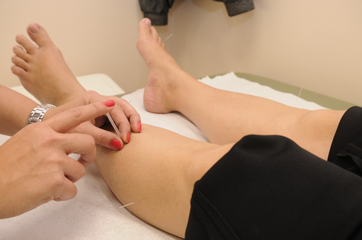 A person receiving acupuncture